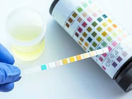 Hoe lees je Combur urine teststrip af