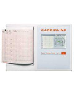 Cardioline ECG 200L rust ECG met interpretatie